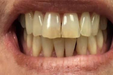 teeth-whitening-03